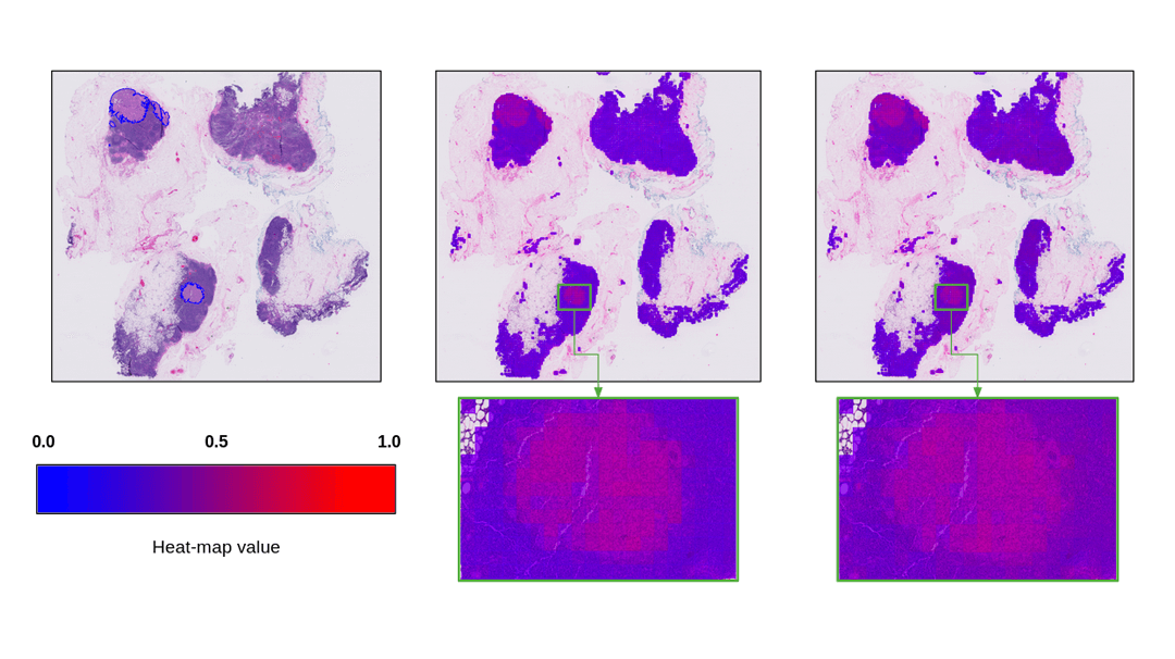 Improving Interpretability of Computer-aided Diagnosis tools on Whole Slide Imaging