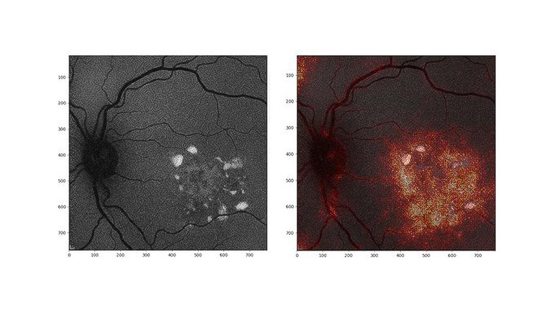 Deep Learning-Based Classification of Inherited Retinal Diseases Using Fundus Autofluorescence