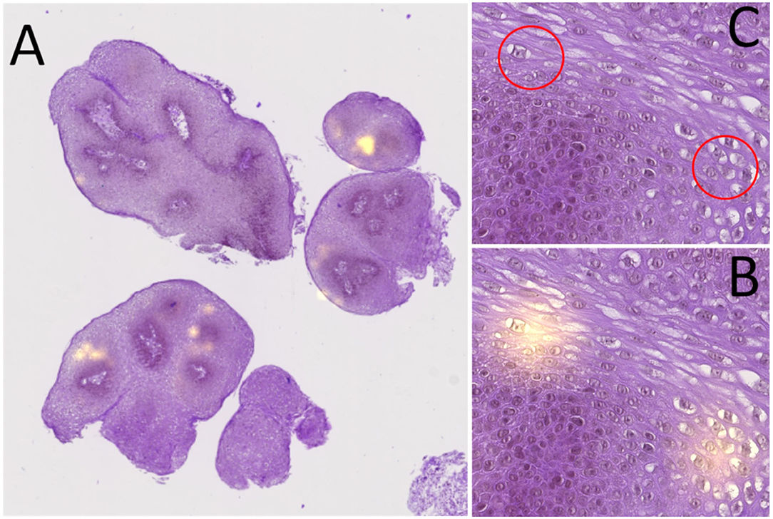 Histological Severity Risk Factors Identification in Juvenile-Onset Recurrent Respiratory Papillomatosis: How Immunohistochemistry and AI Algorithms Can Help?
