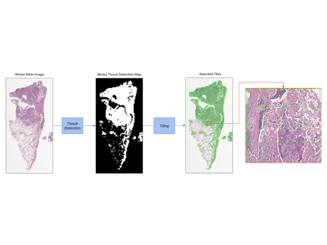 Automatic Feature Selection for Improved Interpretability on Whole Slide Imaging
