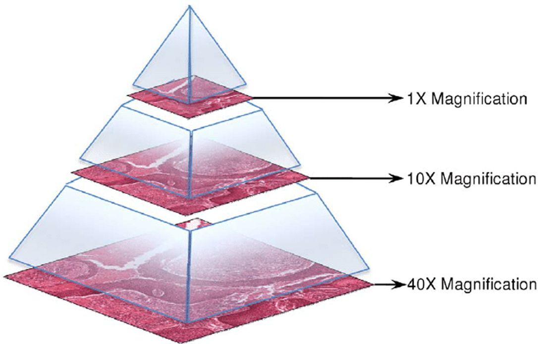 Choosing the right resolution to train Deep Learning models on Histopathology images